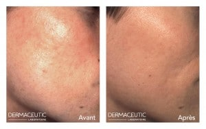 DERMACEUTIC-MASK PEEL