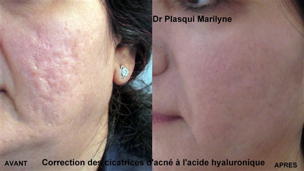 injection acide hyaluronique cicatrices acne
