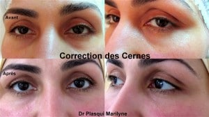 correction cernes creux acide hyaluronique